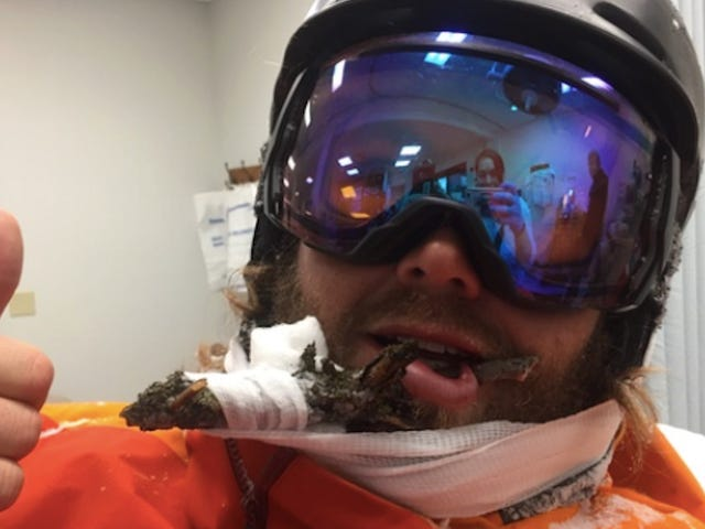 Ski Bro Extremely Chill About Getting Face Impaled By Tree Branch