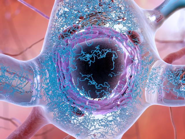 Nach gescheiterten Alzheimer-Studien finden Wissenschaftler mit einer neuen Strategie vorsichtig Hoffnung