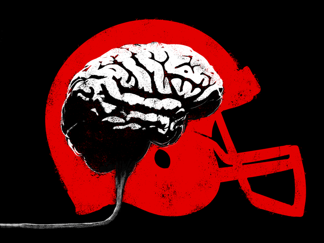 The NCAA Is Running Out Of Excuses On Brain Injuries