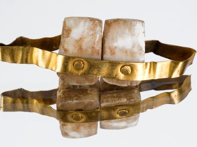 Dientes de animales, madera y porcelana: cómo hacían las primeras prótesis dentales