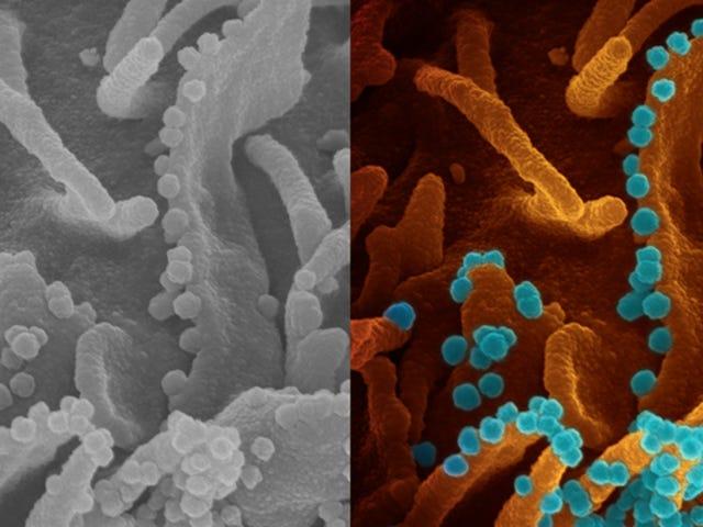 การไหลของไวรัสในระหว่างการติดเชื้อ Covid-19