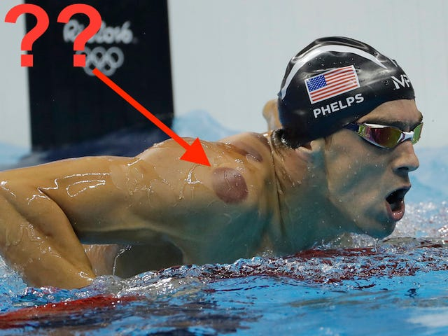 Who Cupped Michael Phelps Before He Won a Gold Medal Last Night?