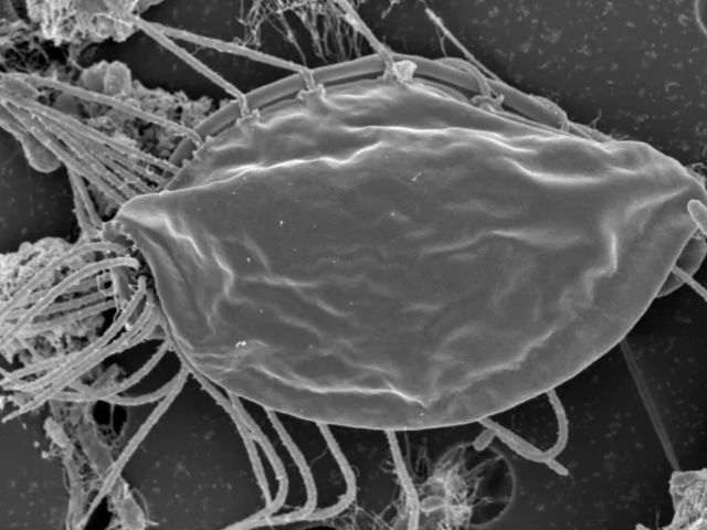 Bizarre Microbes Represent a Major New Branch on the Evolutionary Family Tree