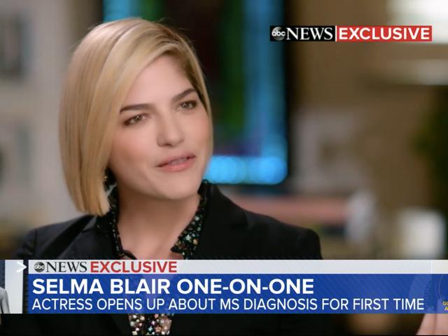 Selma Blair không hoảng sợ vì chẩn đoán MS của cô, nhưng nhẹ nhõm