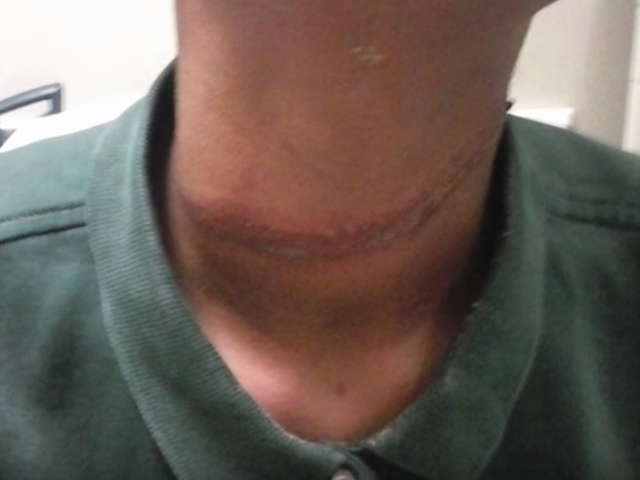 Family Alleges Students at a Texas School Wrapped a Rope Around Their Daughter's Neck