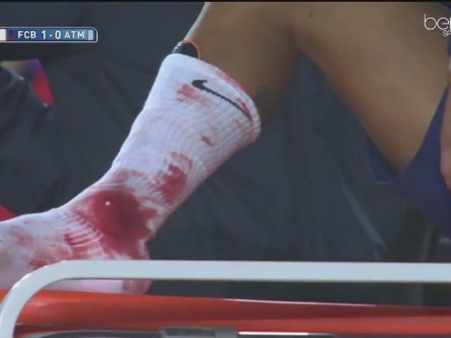 Neymar Bloodied af Atlético Madrid Boot