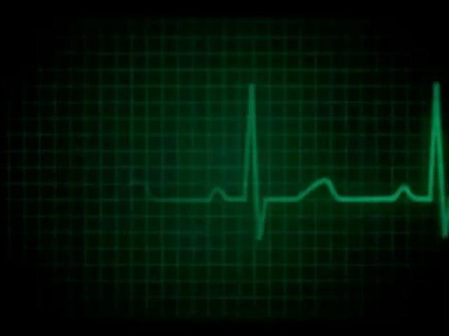 Pentagon har en enhet som kan använda en laser för att identifiera någon baserad på deras hjärtslag