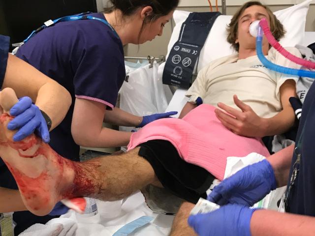 Un enjambre de criaturas sin identificar causa serias heridas en un joven que medi los pies en una playa australiana