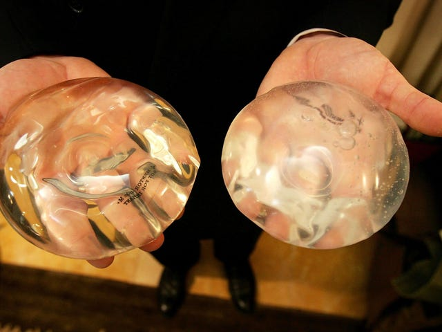 A Woman's Breast Implant Bounced Away a Bullet & Saved Her Life