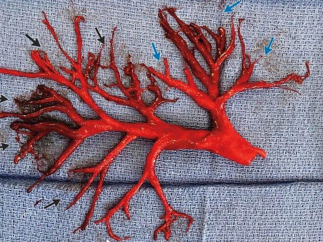 En hjertesvikt pasient faktisk hostet opp denne blodkledde formet som en lungepassasje