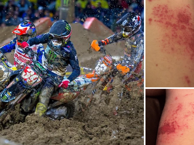 Supercross Riders Show Up With Severe Rashes After Race, Blame Drying Agent