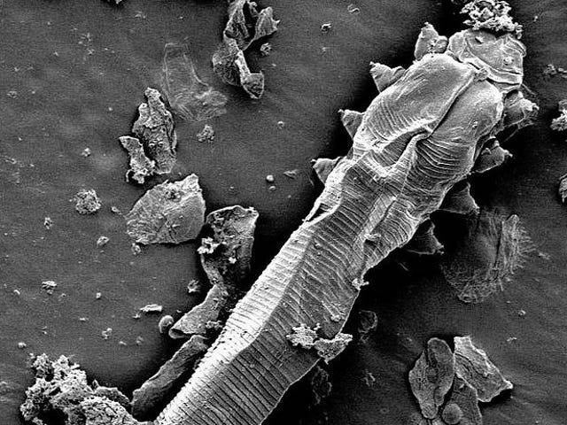 En estos momentos hay una criatura microscópica recorriendo tu cara, y un día pondrá un huevo para que el ciclo continúe