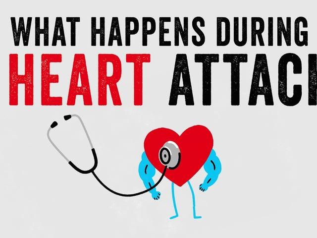 Qué sucede durante un ataque al corazón y cómo se trata