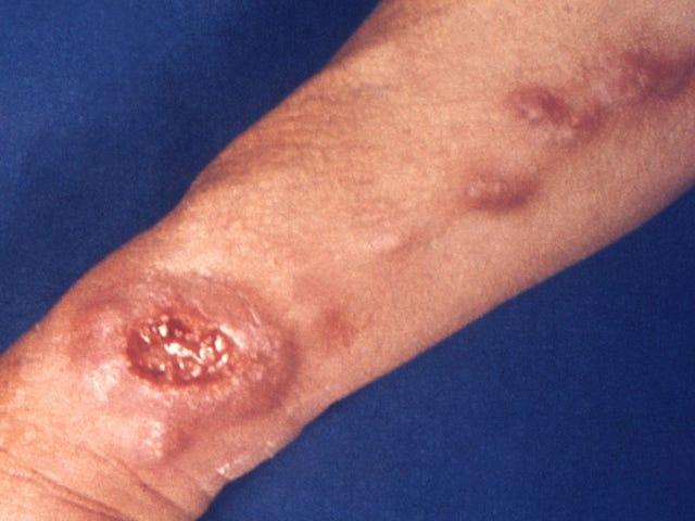 Sandfliesin levinnyt parasiittisairaus on yleisempää Yhdysvalloissa kuin aikaisemmin