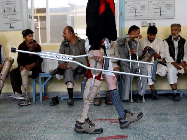 Στο κέντρο προσθετικής του Αφγανιστάν
