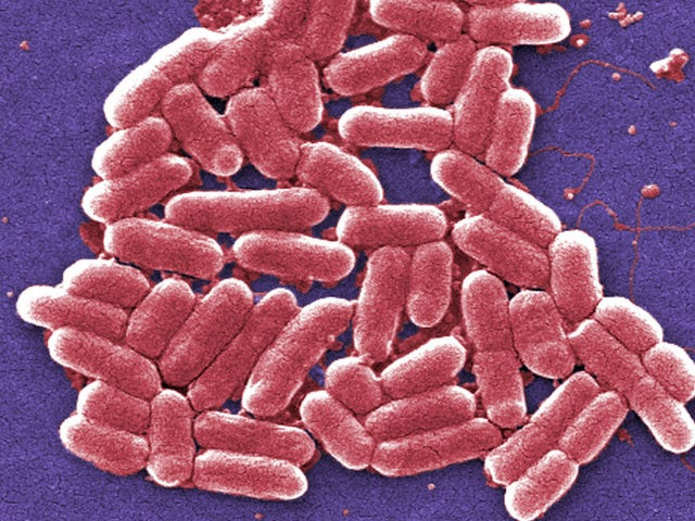 Fecal Transplant Patient Killed by Superbug Traced to Donor Stool