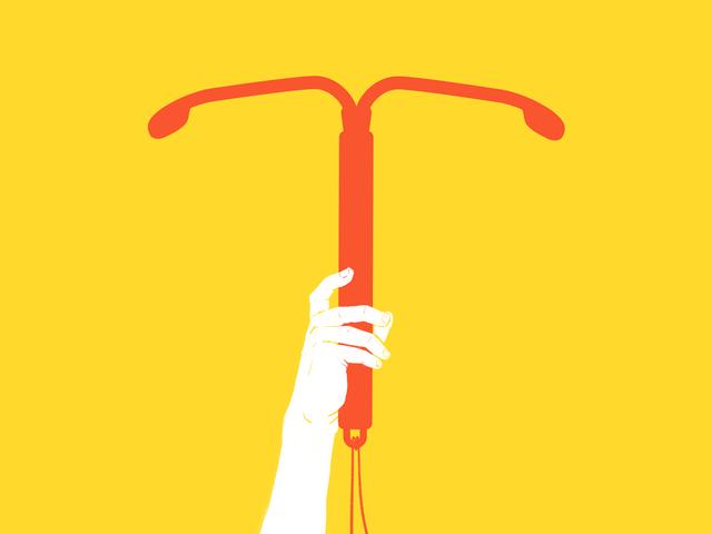 Entinen abortti Doula selittää, miksi IUD voi olla oikea sinulle