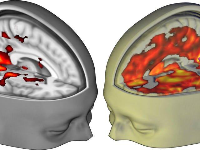 Captan por primera vez con un escáner el asombroso efecto que el LSD tiene sobre tu cerebro