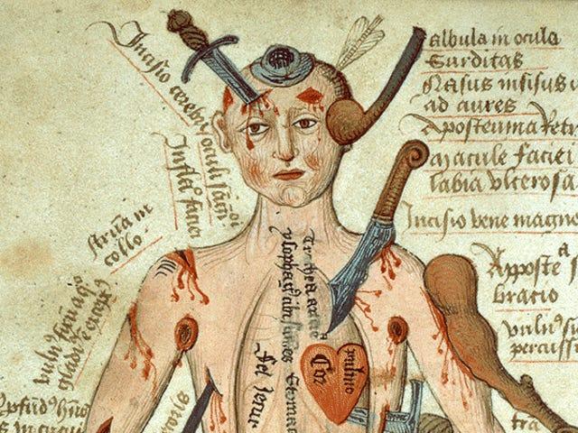 DIY器官移除,痛苦和血腥的奇迹:第一次手术的可怕世界
