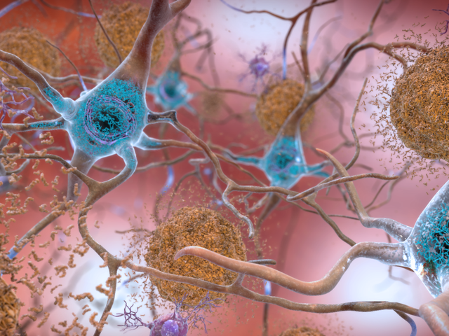 European Scientists Have Made an Intriguing Discovery in Alzheimer's Drug Research