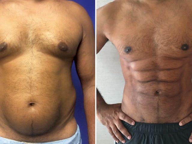 Évitez le gymnase, les chirurgiens plasticiens peuvent maintenant sculpter la graisse du ventre en un étrange paquet de six ciseaux