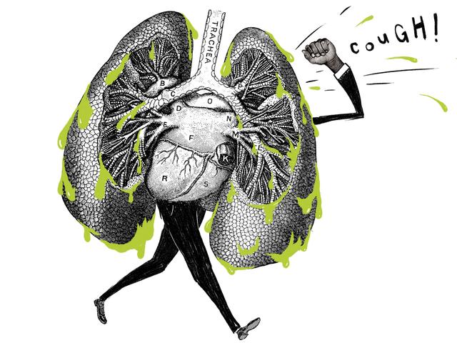 Viêm phổi đi bộ là gì và nó khác với viêm phổi thông thường như thế nào?