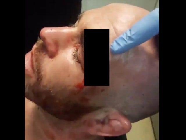 MMA Fighter Takes Knee To The Face, Suffers Extremely Gnarly Head Wound