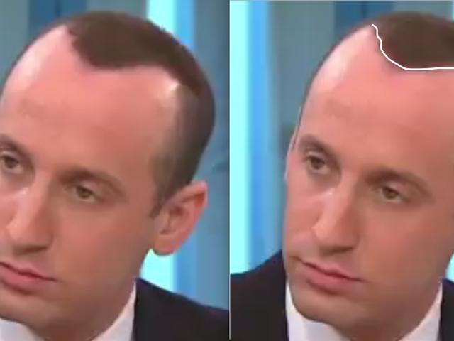 """Stephen Miller's """"Hair"""""""