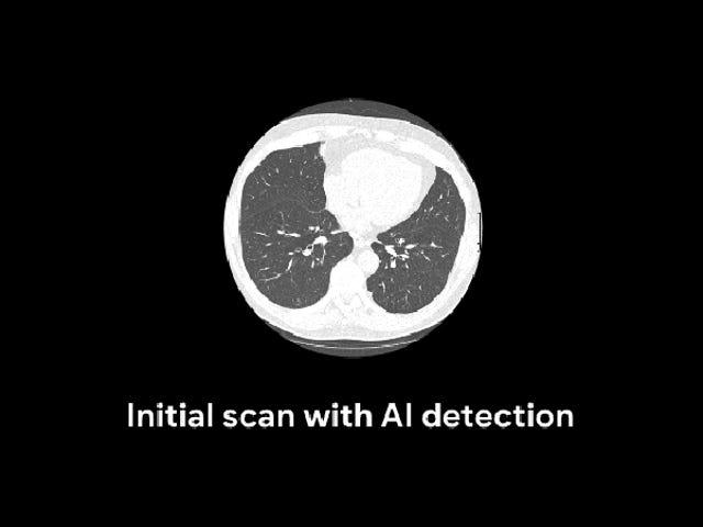 I ricercatori di Google hanno addestrato un algoritmo per individuare il cancro ai polmoni meglio dei radiologi