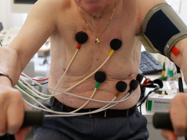 Un algoritmo può diagnosticare una malattia cardiaca migliore di una persona?