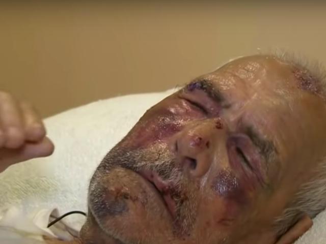 'Kendi Ülkenize Geri Dönün': 4 Temmuz Saldırısı Sırasında Bir Tuğla İle Dövülen Yaşlı Meksikalı Adam