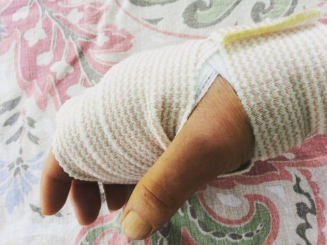Injured Paw