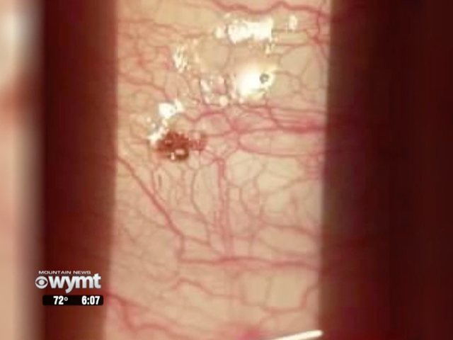 Tick Lodged on Kentucky Man's Eyeball Made 'Popping Sound' When Doctor Pulled It Off