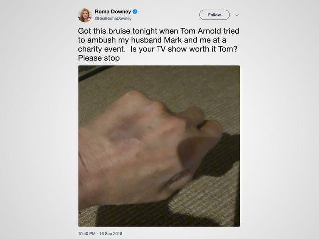 Roma Downy Injured During a Brawl Between Tom Arnold and Mark Burnett at an Emmys Party