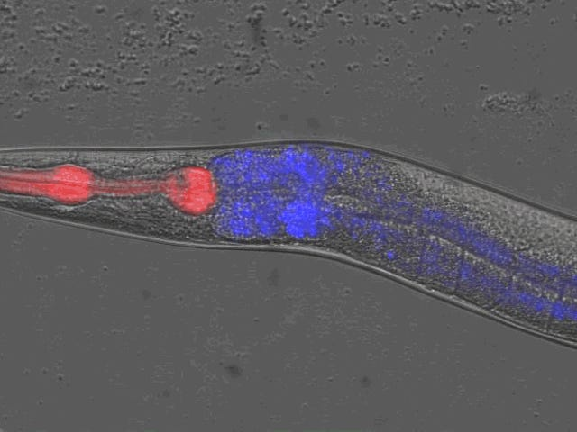 First Observation of Rigor Mortis in Worms Could Help Us Understand Death by Old Age