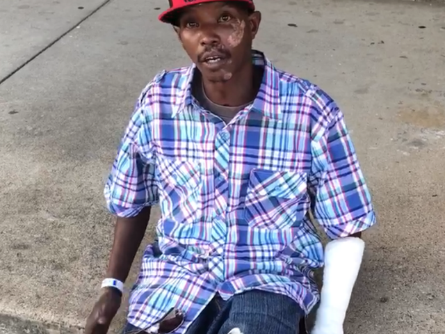 Man Left Disfigured After Allegedly Being Assaulted by Grand Prairie, Texas, Police Officers
