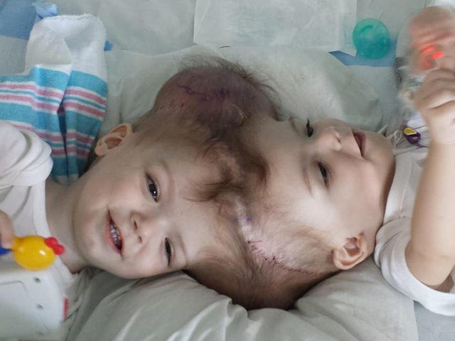 13-Month-Old Twins Conjoined at the Head Successfully Separated
