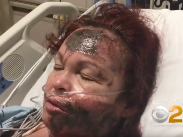 Woman Sprays Her Own Face With Acid, Blames It on Black Woman