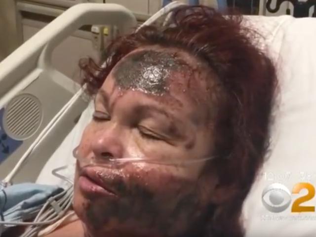 Kvinnan spruter sitt eget ansikte med syra, skyller det på svart kvinna