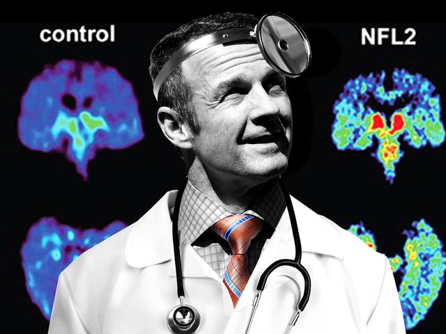 Merril Hoge Doesn't Want You To Use Your Brain