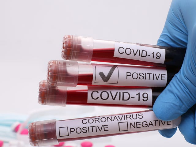 Coronavirus Infected 9 People in One Black Family. 3 Died. They Still Have Trouble Getting Tested