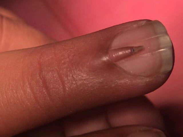 Here Is a Teeny Nail Growing on Top of Another Nail on Someone's Middle Finger