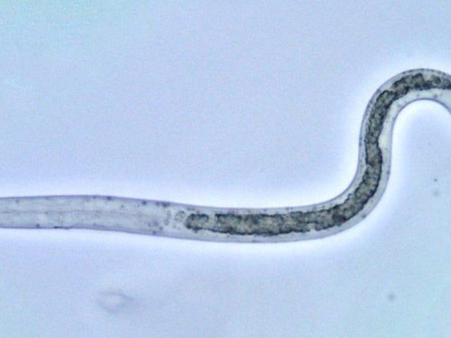 Tras 10 años con dolor de estómago le encuentran la causa: un gusano de medio metro vivía en los intestinos
