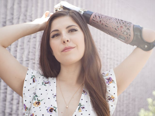 'Bionic Actress' Angel Giuffria Is Ready for People With Disabilities to Get Their Close-Up