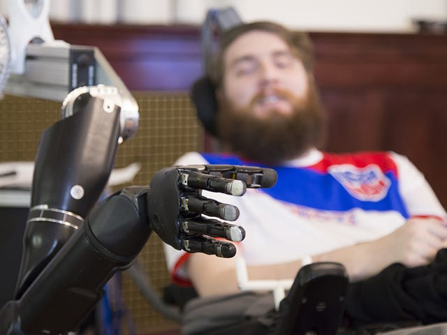 Brain Implant Allows Paralyzed Man to Feel Objects With a Prosthetic Limb
