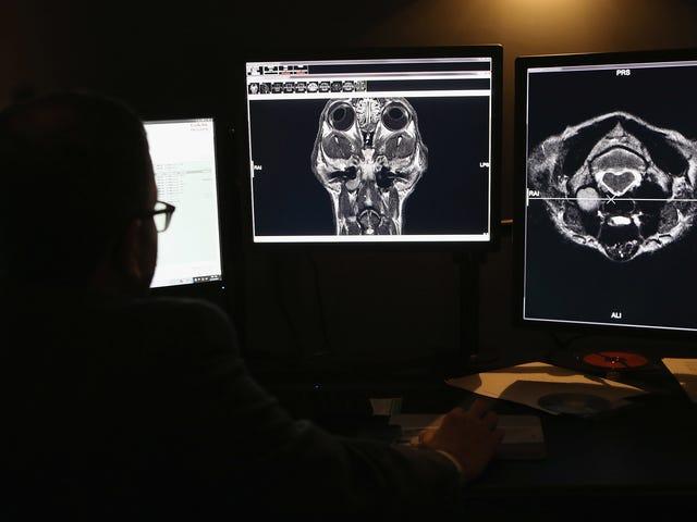 Jeder kann sich die medizinischen Bilder und Daten von Millionen von Amerikanern ansehen