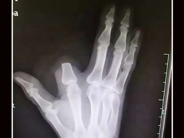 Han klipper fingeren efter en slangebid.  Lægerne forklarer, at det ikke var nødvendigt