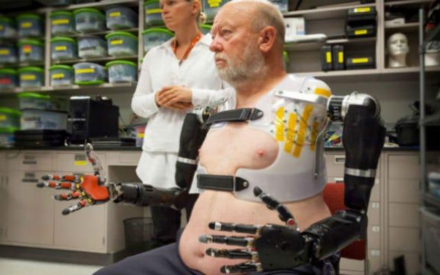 Este hombre controla sus brazos robóticos con su mente
