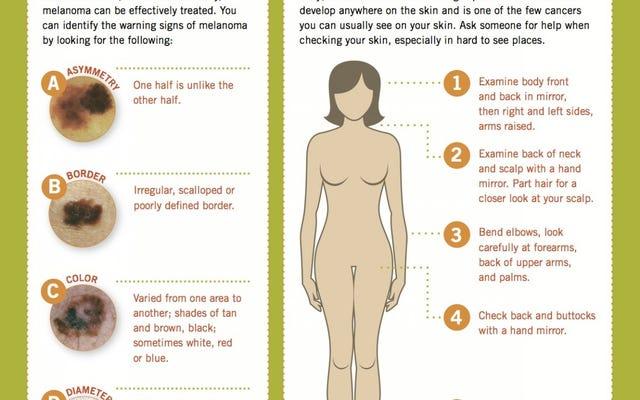 黒色腫のABCDEで皮膚がんがないか体をチェックしてください