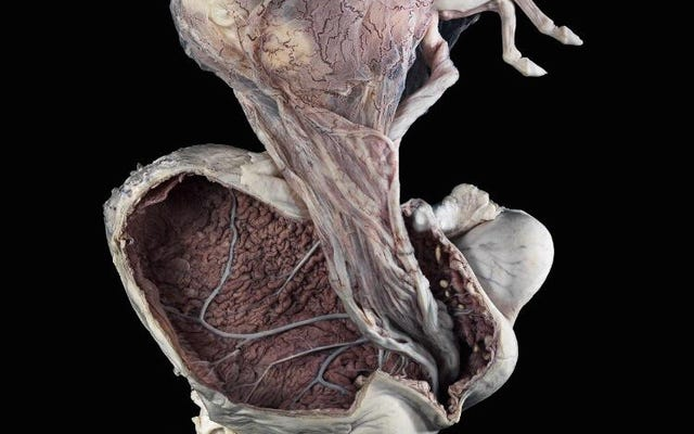 Nhau thai là cơ quan sinh sản đầu tiên của bạn